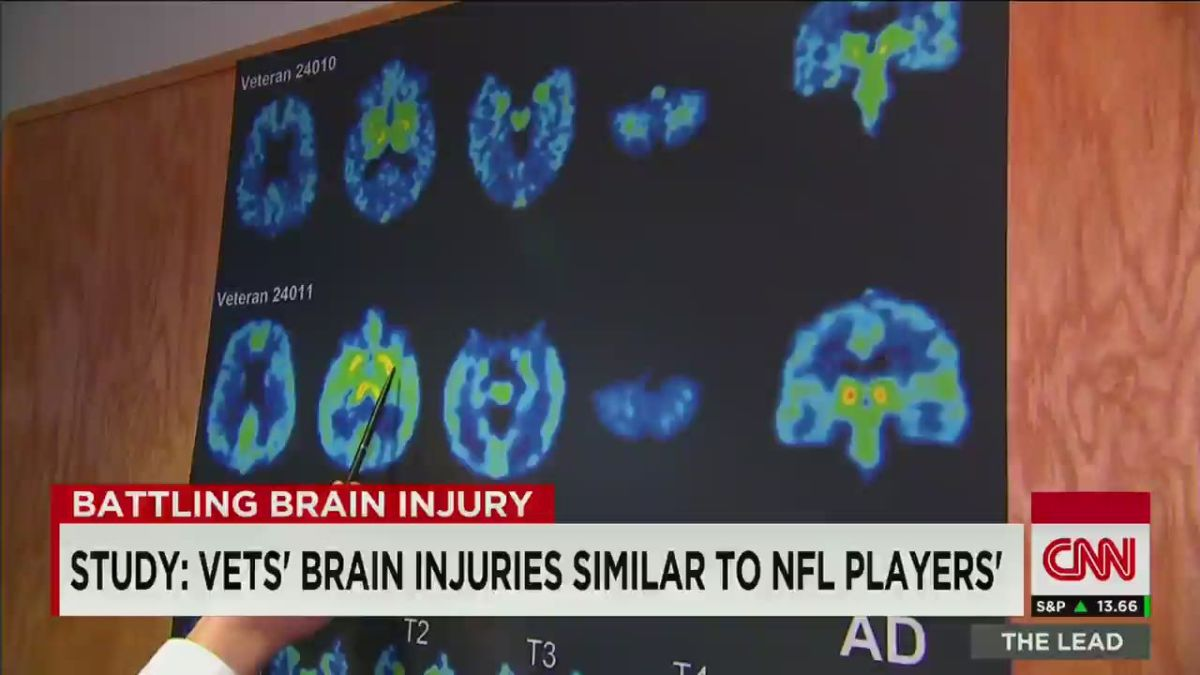 Could veterans have concussion-related CTE? - CNN