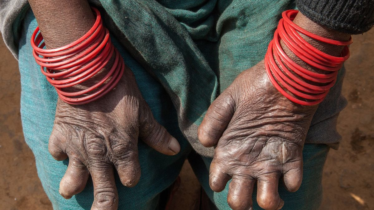 Leprosy still lurks in United States, study says - CNN