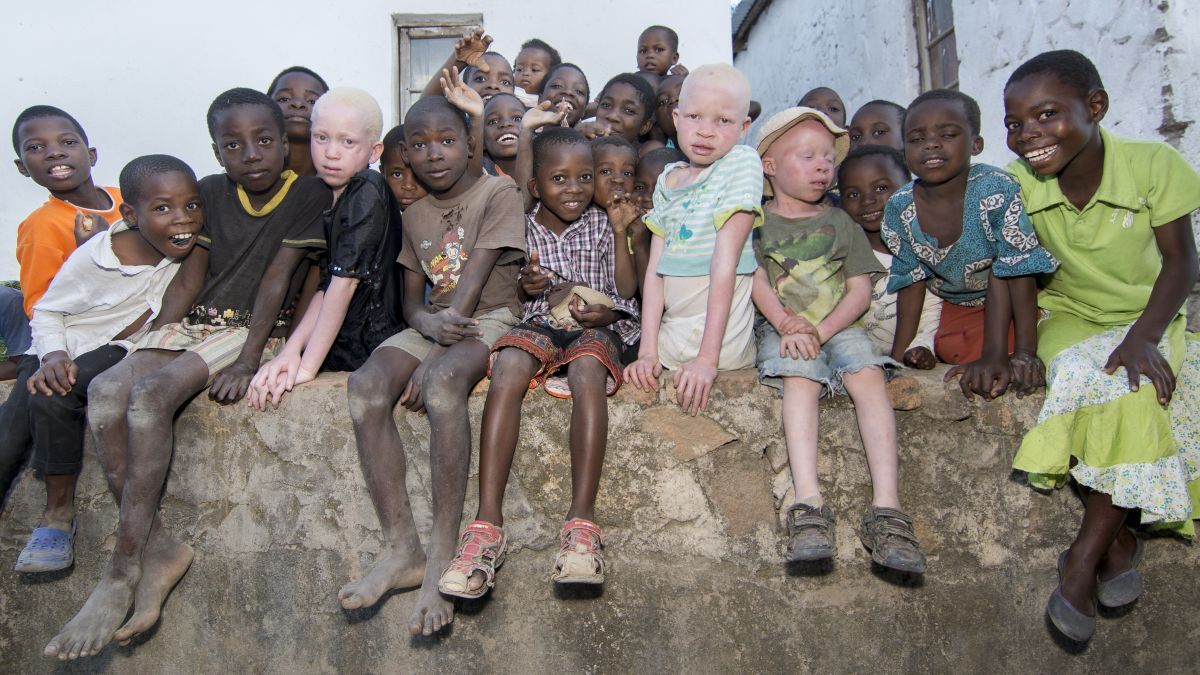 https%3A%2F%2Fcdn.cnn.com%2Fcnnnext%2Fdam%2Fassets%2F160607125302-malawi-albinos-01.jpg