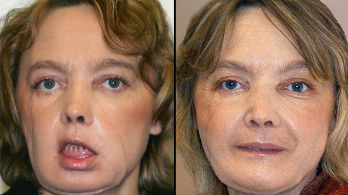 Face transplant