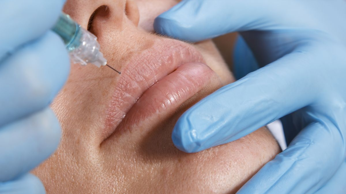 Cosmetic skin fillers rise in popularity, and complications