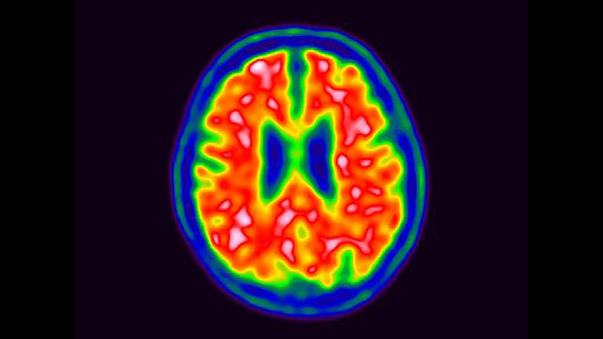 Herpes virus may play role in Alzheimer's, study says - CNN