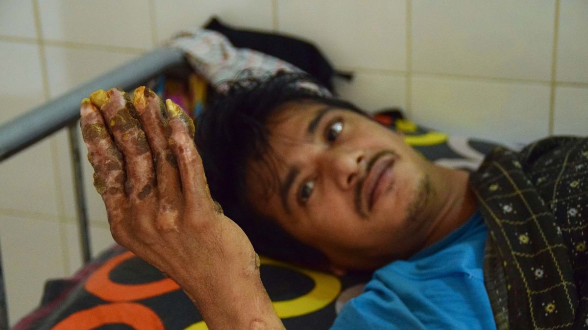 Tree man': Bangladeshi man back in hospital and needs more
