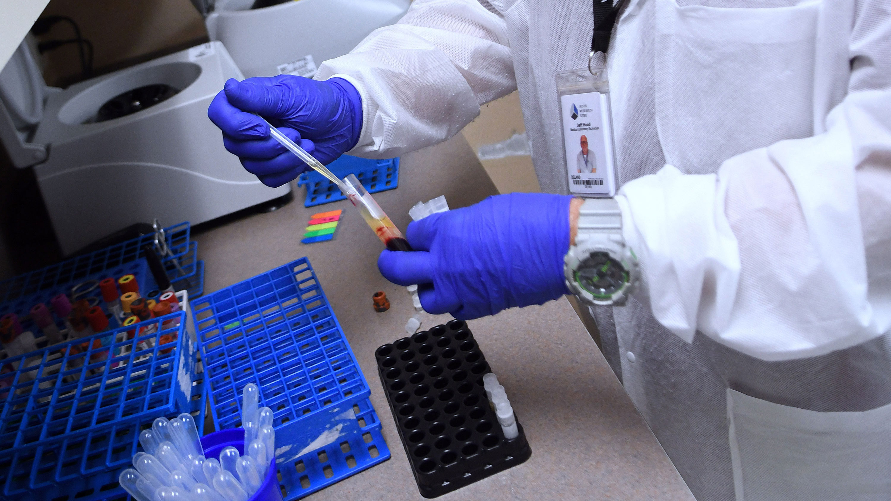 A laboratory technician at Accel Research Sites prepares a blood sample for analysis as part of the Moderna Covid-19 vaccine trial on August 4 in DeLand, Florida.