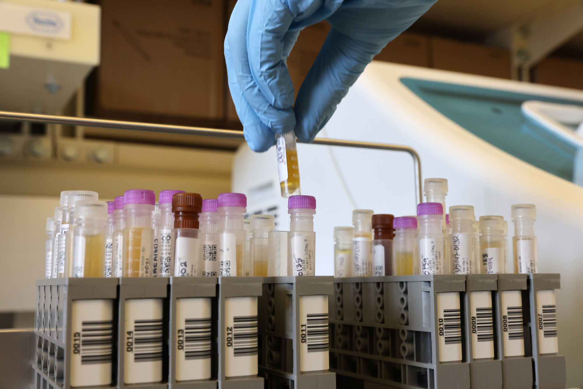 Researchers at the UW Medicine Retrovirology Lab at Harborview Medical Center work on samples from the Novavax phase 3 Covid-19 clinical vaccine trials on February 12 in Seattle.