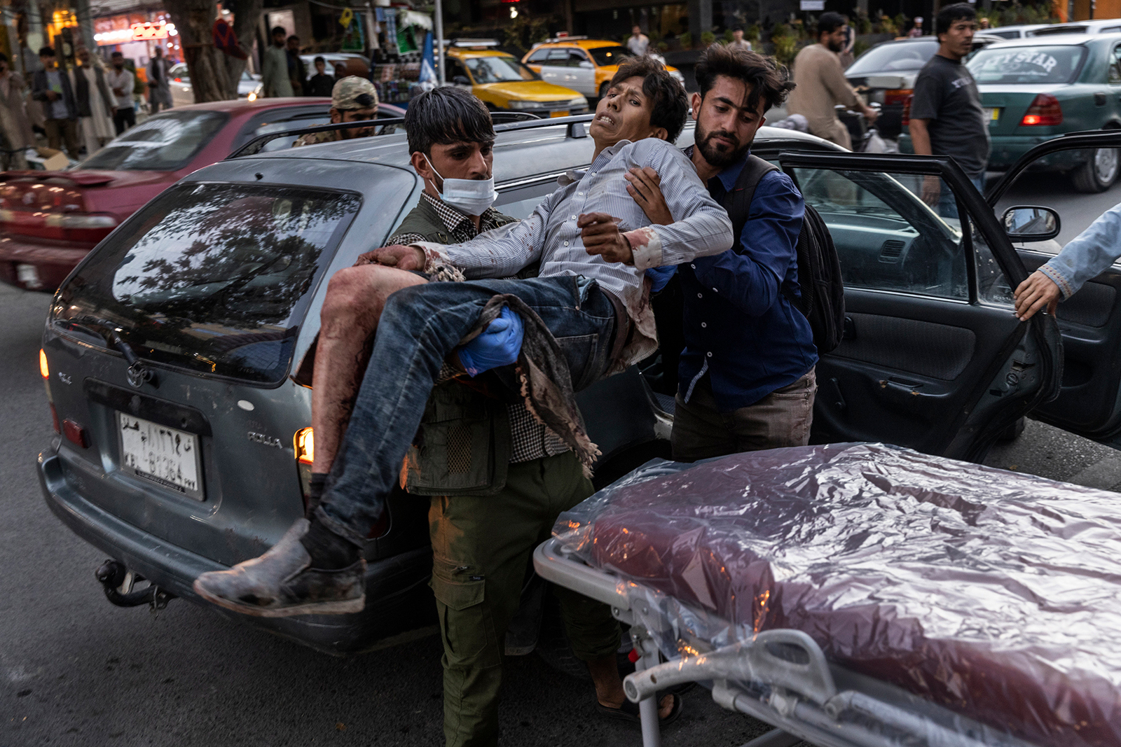 A person wounded in a bomb blast outside the Kabul airport in Afghanistan on Thursday, Aug. 26, arrives at a hospital in Kabul.