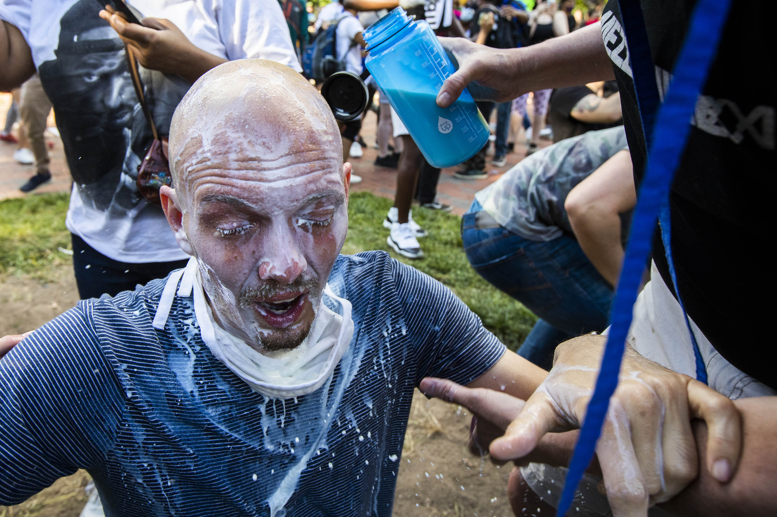 Milk is poured into a demonstrator's eyes to neutralize the effect of pepper spray during a rally at Lafayette Park near the White House in Washington D.C., on Sunday, May 31.