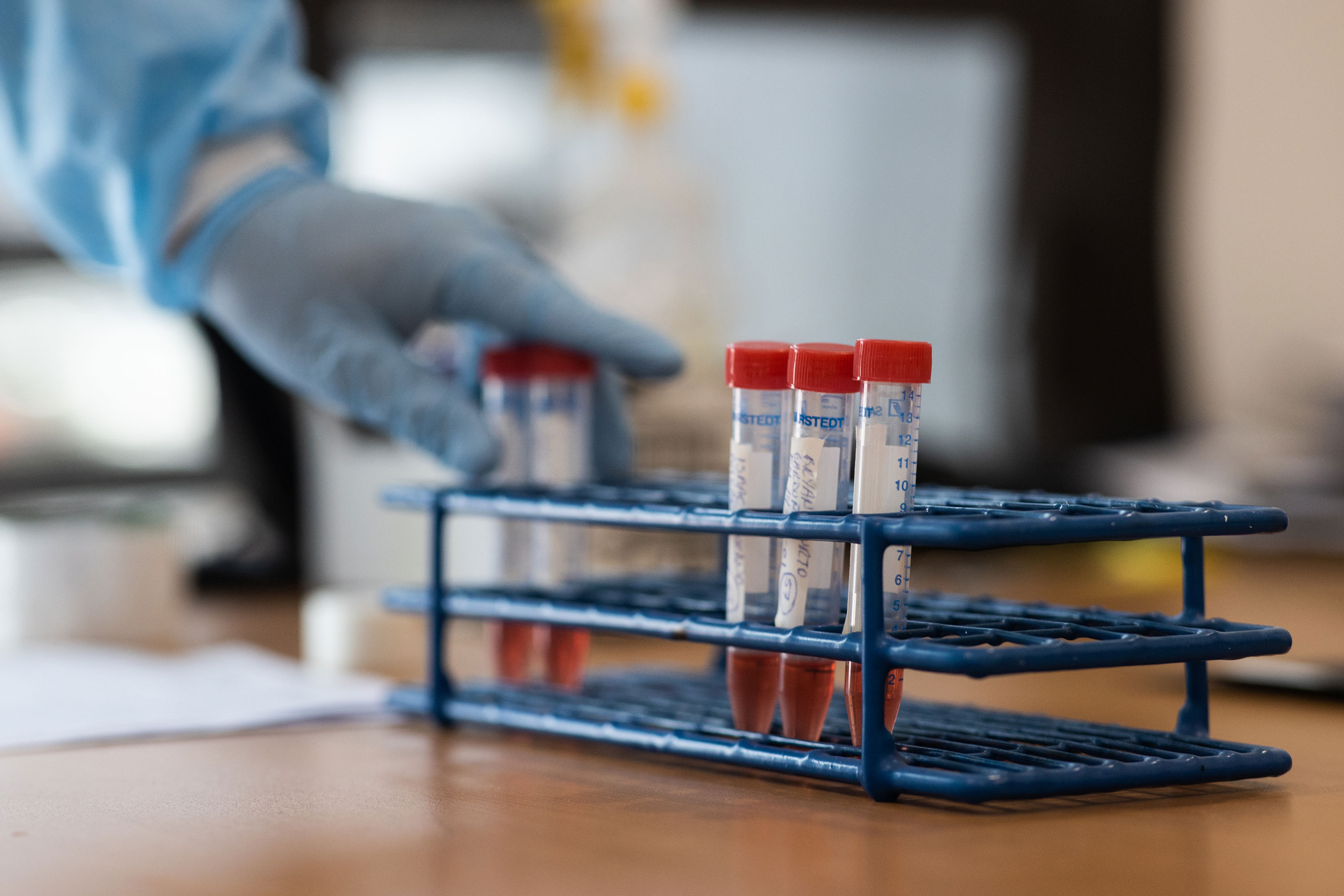 A worker tests swabs for coronavirus at Central de Abastos on June 19 in Mexico City, Mexico.