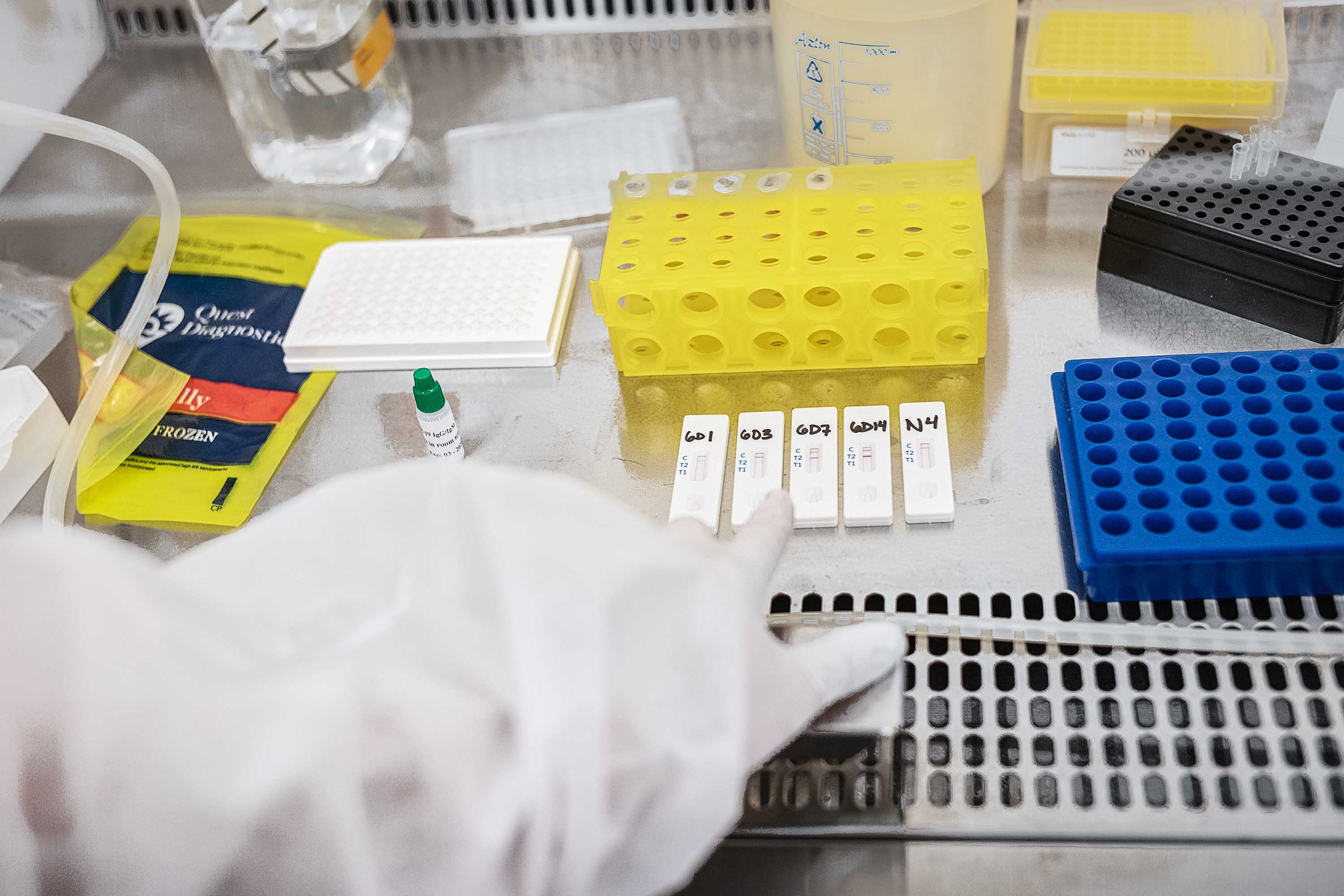 A scientist works to validate antibody tests with samples from recovered coronavirus patients at a Mirimus, Inc. lab, in Brooklyn, New York, on April 10.