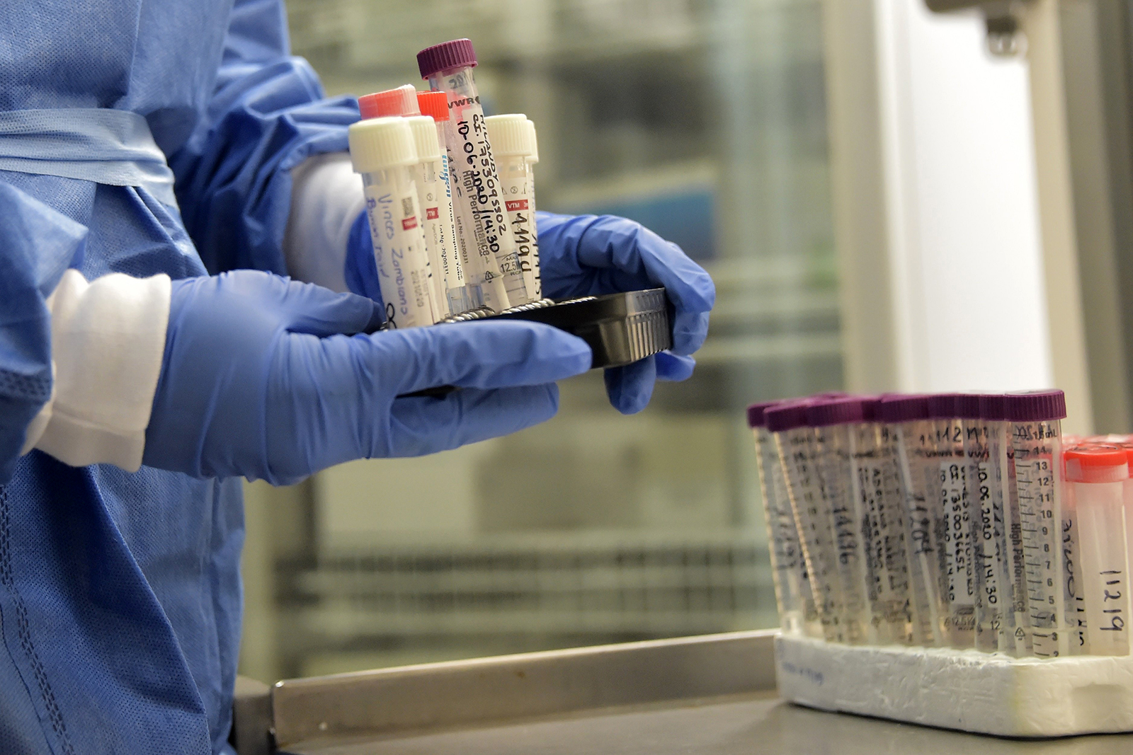 A medical workers holds test samples of suspected Covid-19 cases at the laboratory of the IESS Carlos Andrade Marin hospital in Quito, Ecuador on June 17.