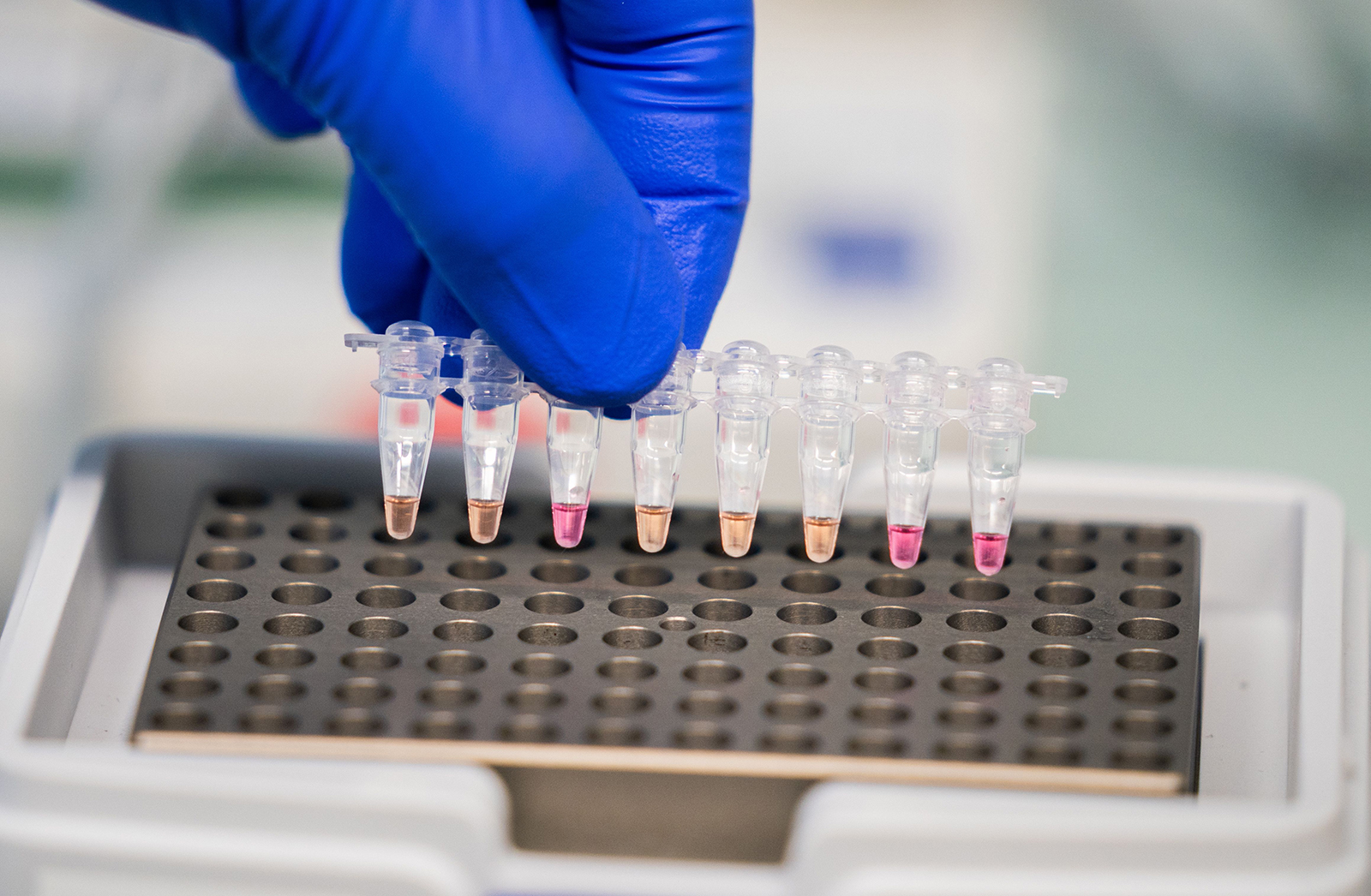 """Yellow colored coronavirus Covid-19 positive samples are seen, as Viennese research institutes and the Agency for Health and Food Security present a new coronavirus Covid-19 test method called """"LAMP"""" during a media event on October 21, in Vienna."""