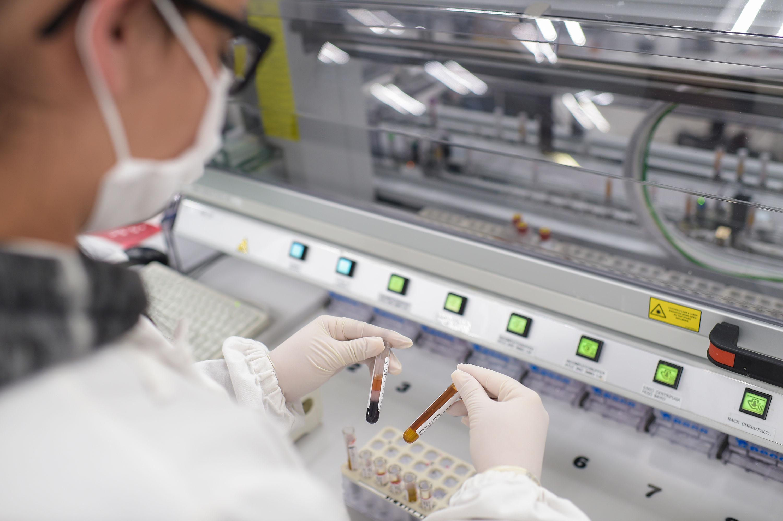 A lab technician holds coronavirus test samples at Hermes Pardini Lab on July 7 in Vespasiano, Brazil.