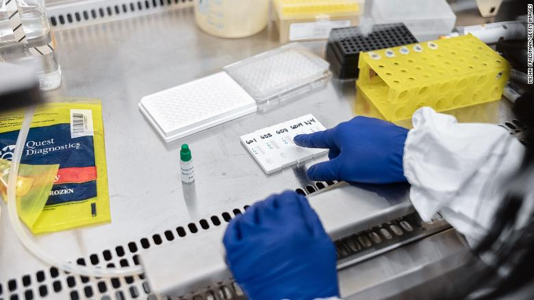 Mirimus Inc. lab scientists work to validate rapid IgM/IgG Covid-19 antibody test samples from recovered patients in Brooklyn, New York, on April 10.