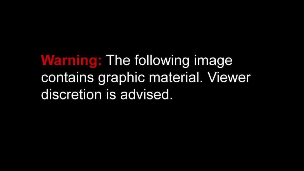 Warning: Graphic image (single)