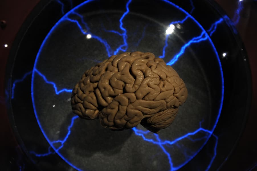 brain implants human
