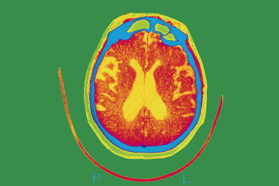 Alzheimer's 0317