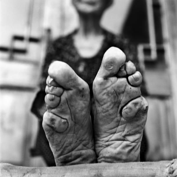 bound feet 8
