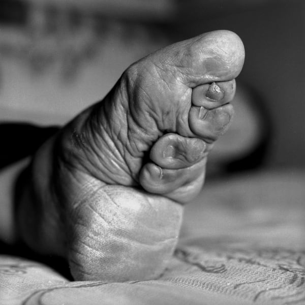 bound feet 10
