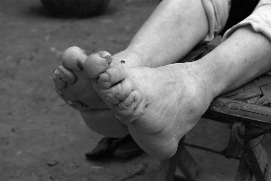 bound feet yang yu ying 2