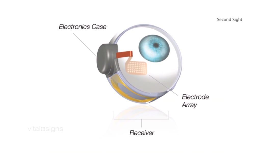 spc vital signs roger pontz bionic eye_00012616