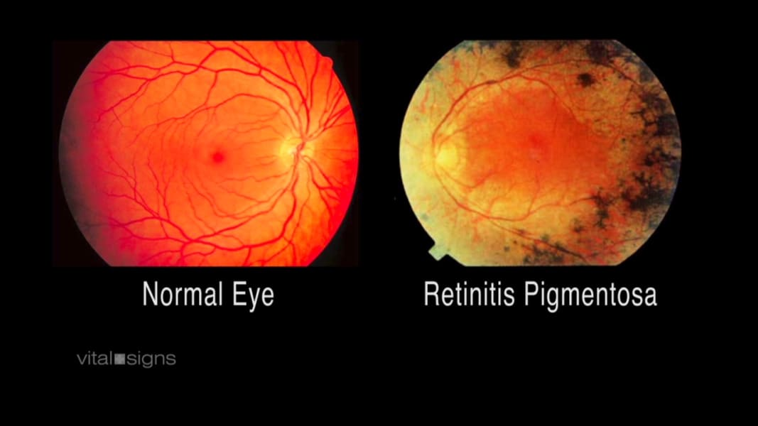 spc vital signs roger pontz bionic eye_00003325