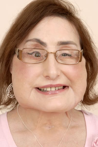 Connie Culp face transplant