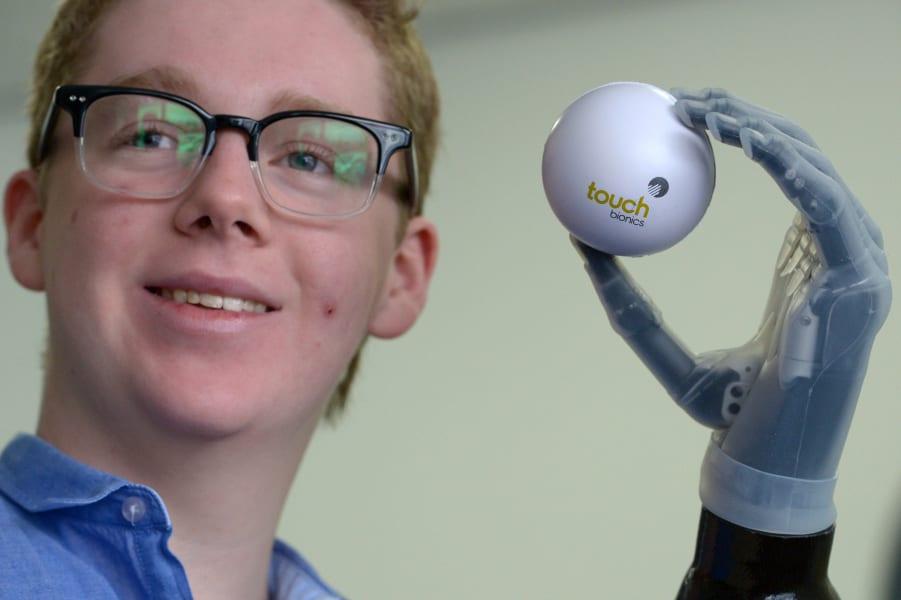 ilimb prosthetic