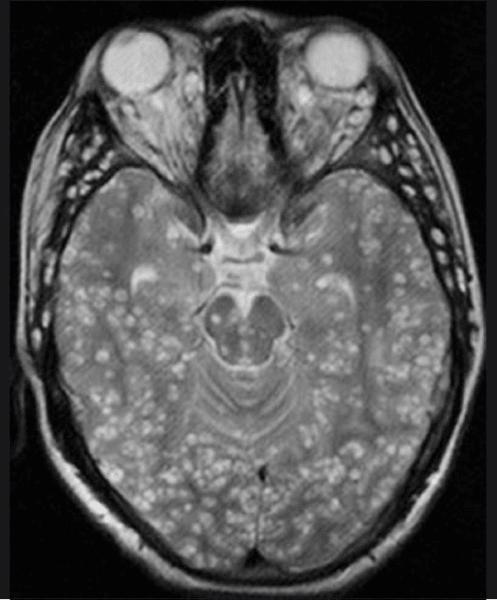 brain worm neurocysticercosis