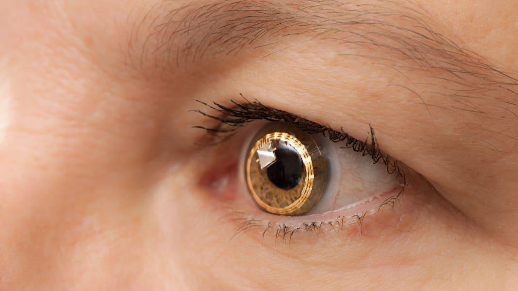 smart contact lens - sensimed