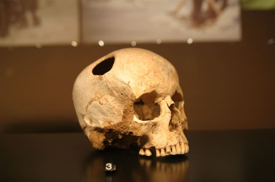 trepanation-2