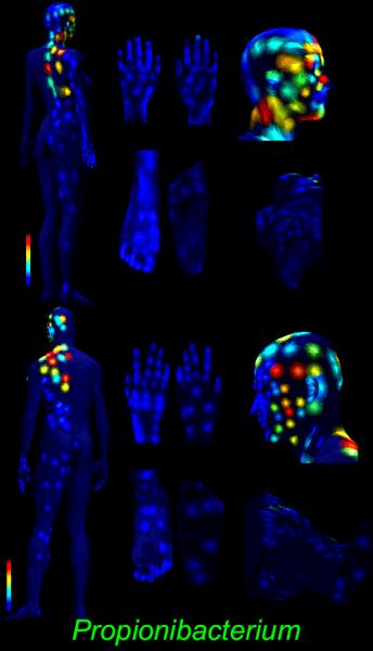 3d skin map propionibacterium 2