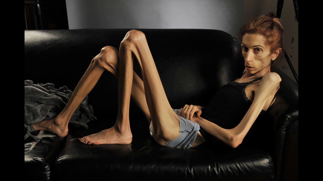 Men's Eating Disorders Often Not Recognized