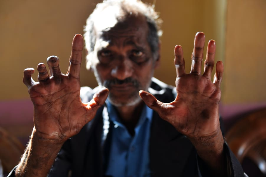 Leprosy mans hands India