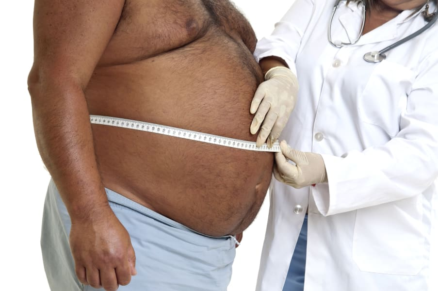 obese man doctor