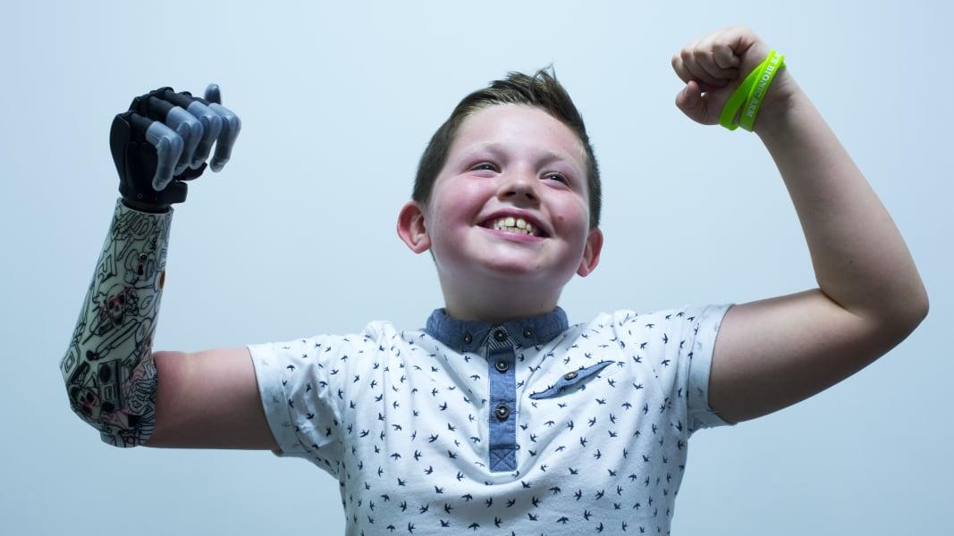 04 medical innovations bionic arm