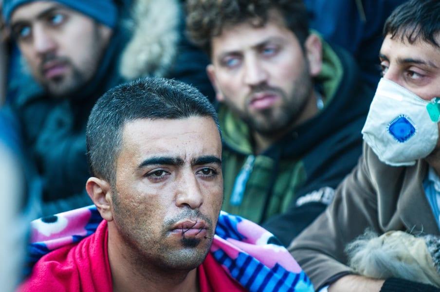refugee lips iran