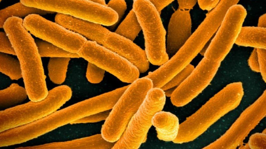 Enterobacter or E. coli