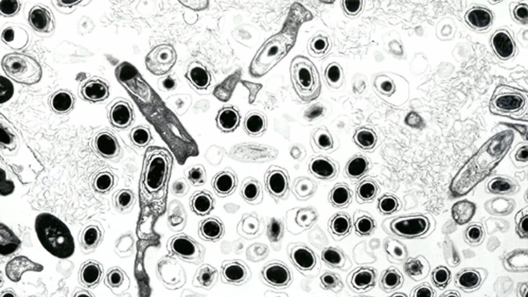 01 anthrax history