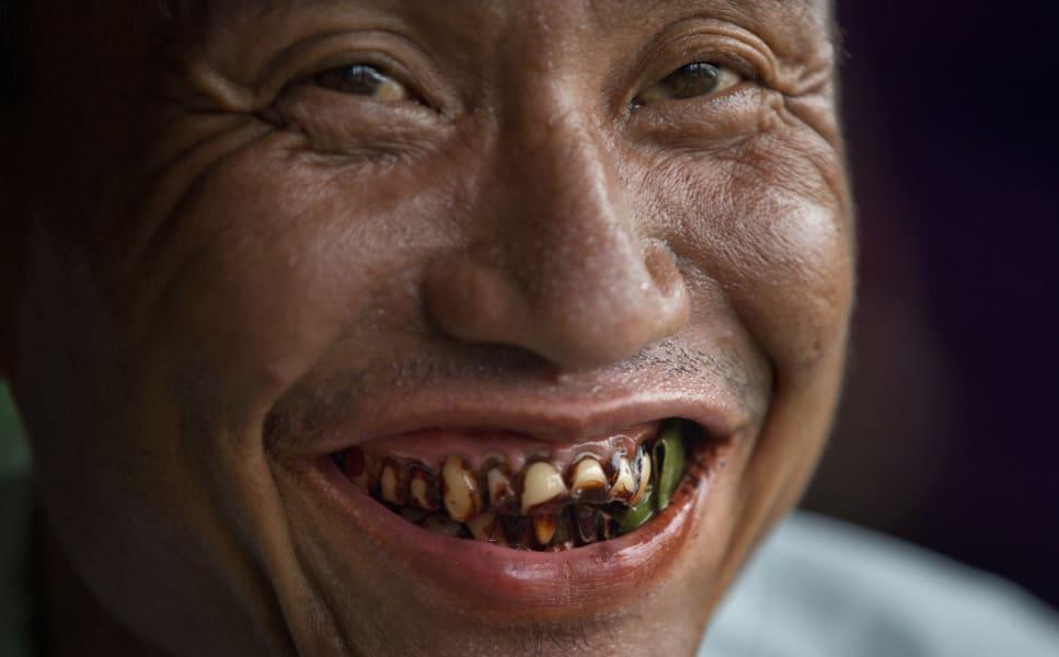 Myanmar betel nut