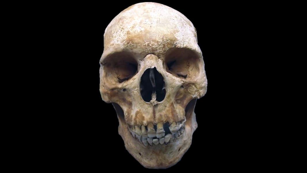 01 medieval pilgrim leprosy skeleton