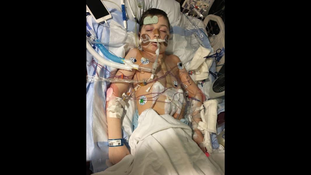 2a.jpg.Pediatric heart-lung transplant