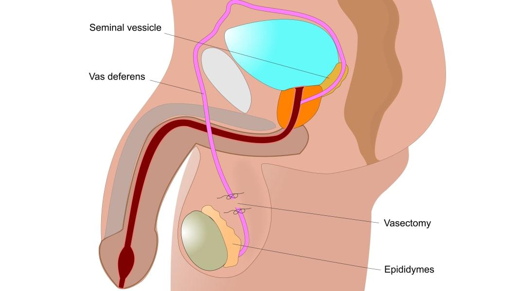 Vasectomy STOCK