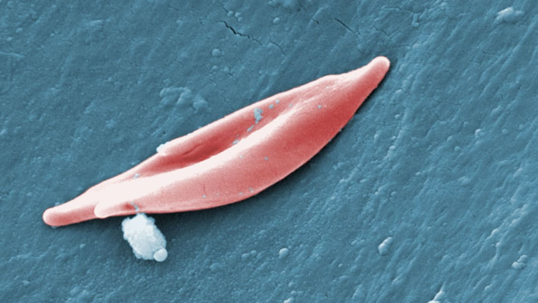 01 Sickle cell anemia