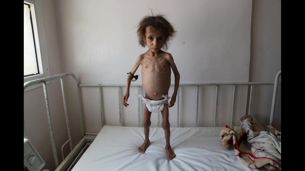 02 yemen civil war malnutrition