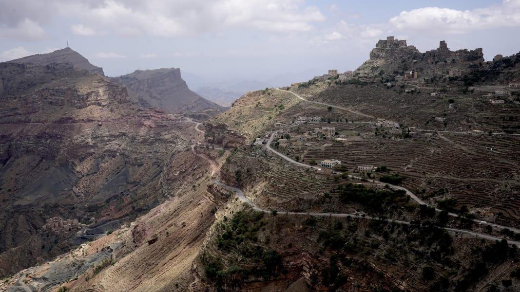 03 yemen civil war malnutrition