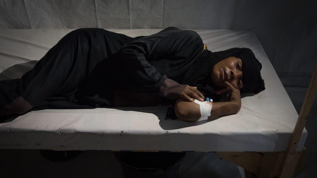 09 yemen civil war malnutrition