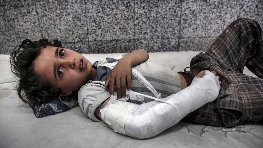 12 yemen civil war malnutrition