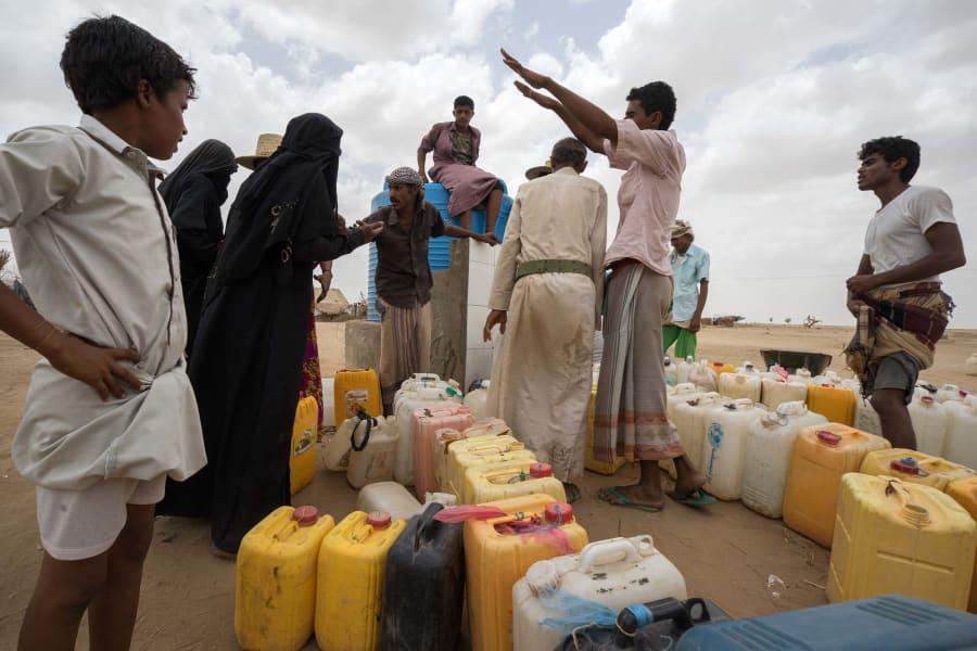 25 yemen civil war malnutrition