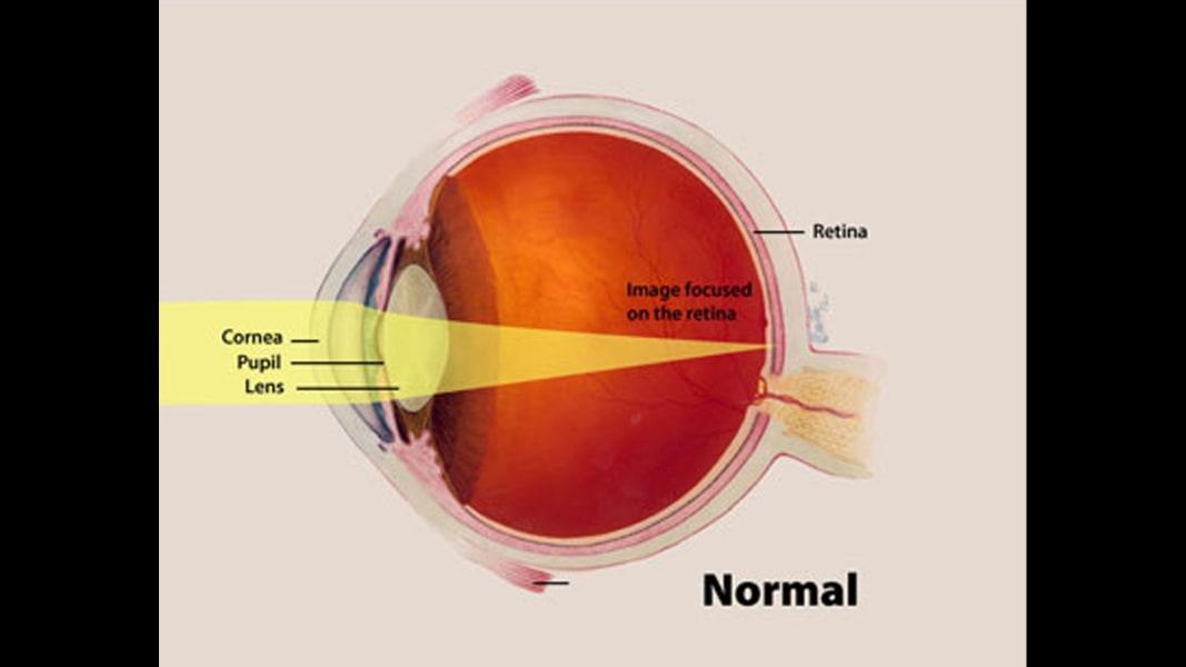 01 eye predicts health conditions normal eye