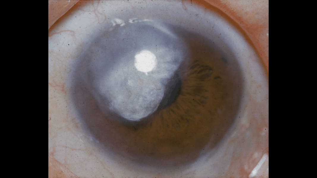 08 eye predicts health conditions glaucoma